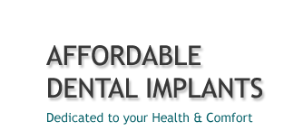 Affordable Dental Implants